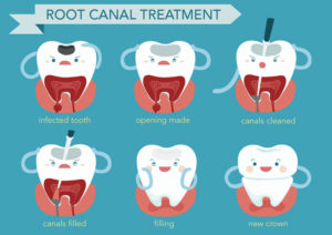 What is a Root Canal and Do I Need One?