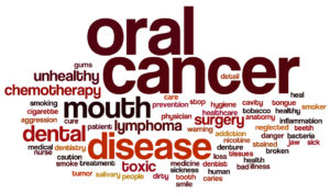 What Causes Mouth Cancer?